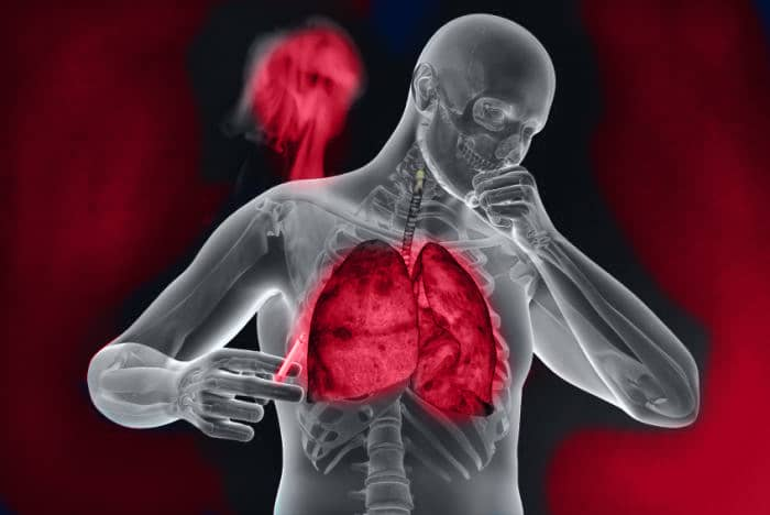 chronic obstructive pulmonary disease, COPD, Genesisdx